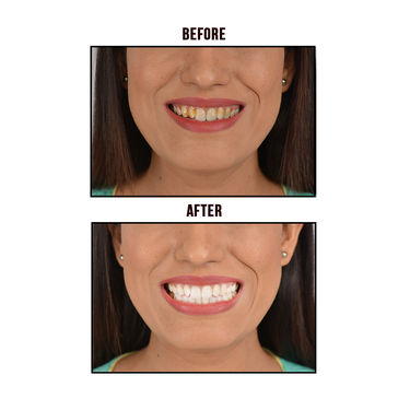 Looks21 Instant Magic Teeth Whitener